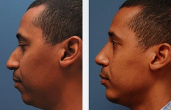 Rhinoplasty before 314275