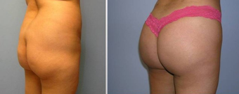 Brazilian Butt Lift (Fat Transfer) before 256422