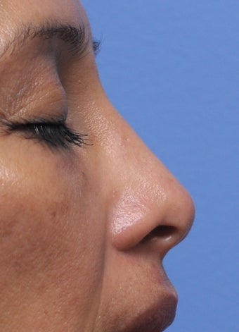 Non Surgical Rhinoplasty 407855