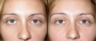 filler to under eye-cheek  before 506298