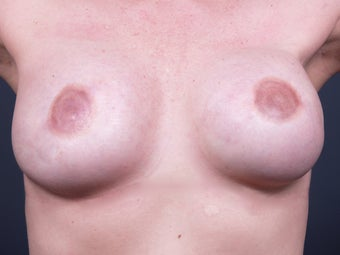 38 Year Old for Breast Reconstruction after 643170
