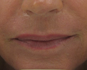 Fraxel re:pair (repair) CO2 laser resurfacing for scar improvement after 44382