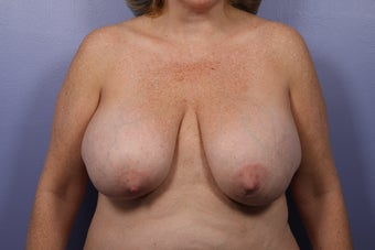 Breast Lift and Implants  before 302593