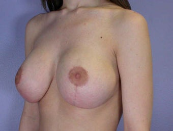 Breast Lift after 285361