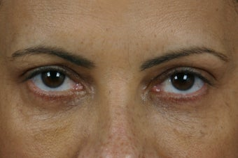 Restylane  after 309257