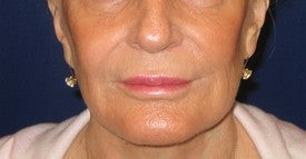 Restylane injection into lips and nasolabial folds after 109944