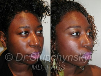 African American Rhinoplasty before 374061