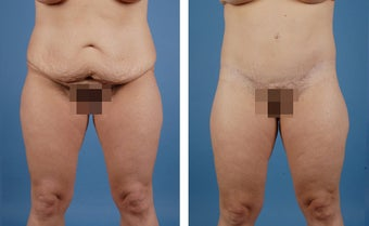 Lower Body Lift and Liposuction of Lateral Thighs before 303681