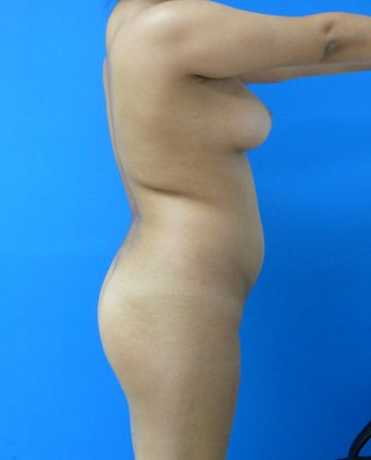 Buttock Augmentation - Fat Transfer 315864