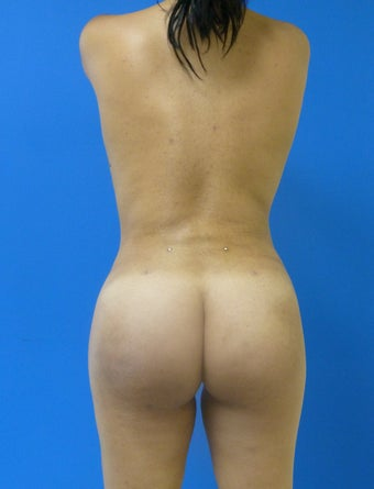 Buttock Augmentation - Fat Transfer after 315864