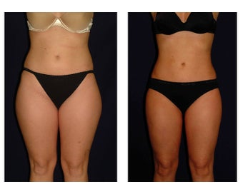 Liposuction before 286632