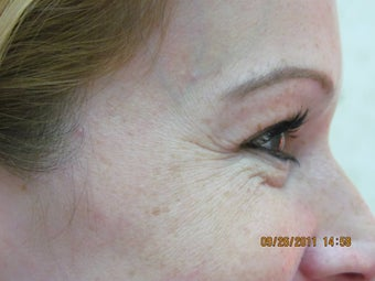 Botox for crow's feet before 399028
