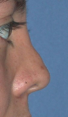 Rhinoplasty - Surgical Revision before 98855