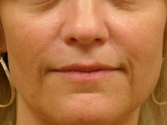 Treatment of prominent nasolabial folds with dermal filler after 377061
