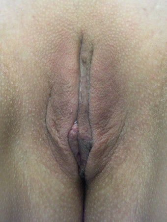 Labiaplasty after 281456