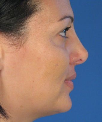 Revision Rhinoplasty 410783