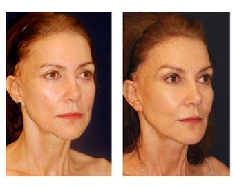 Cheek Augmentation 415264