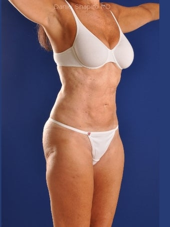 Vaser Hi Def Liposuction of abdomen, thighs, flanks and back with fat injections to buttocks 422729