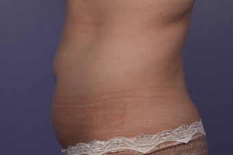 CoolSculpting to Abdomen 429672
