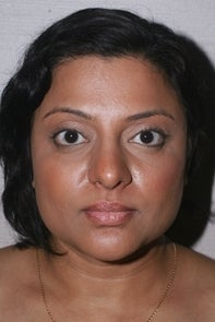 Asian Rhinplasty 448663