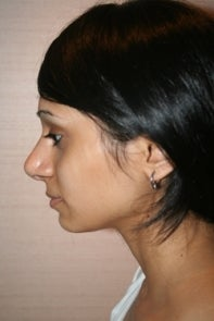 Asian Rhinoplasty 448668