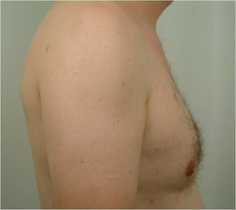 Smart Lipo of the chest 455693