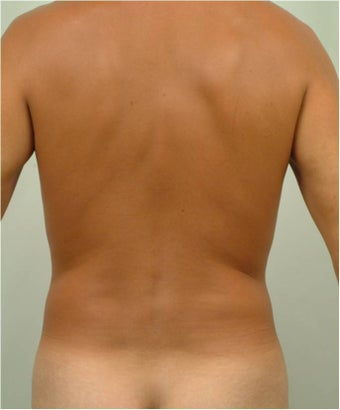 Laser Liposuction  459225