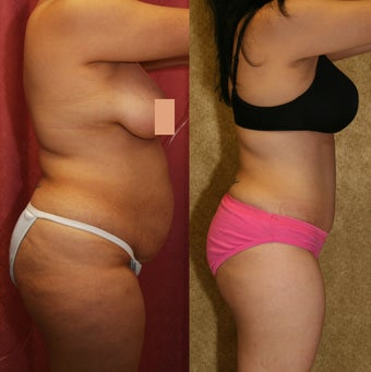 abdominoplasty- tummy tuck 468831