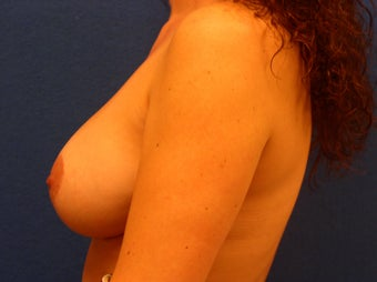 Mastopexy and Breast Augmentation 475919