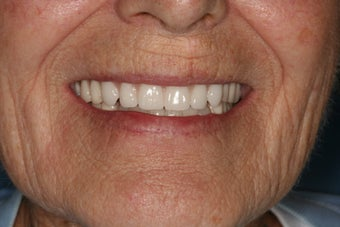 Implant supported overdentures