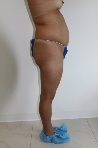 Brazilian Butt Lift 481680