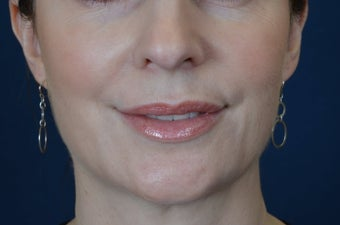 Lip Augmentation with Filler 488200