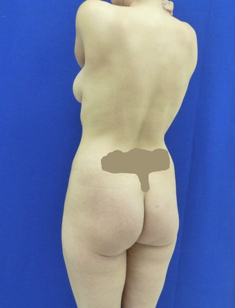 Butt Augmentation 489491