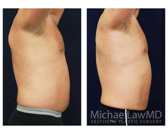 Liposuction 495044