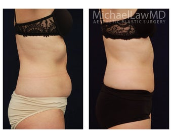 Liposuction 495519