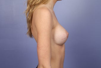 Breast Augmentation 467316