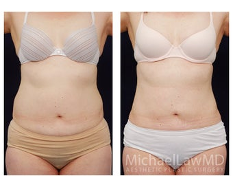 Liposuction before 495477