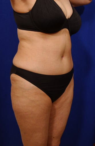 Abdominoplasty with liposculpture of abs and flanks after 82412