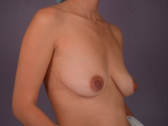 Breast Lift / Breast Augmentation before 291110