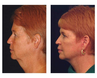 Lower Face and Neck Lift after 355084