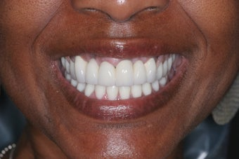 Smile makeover after 372806