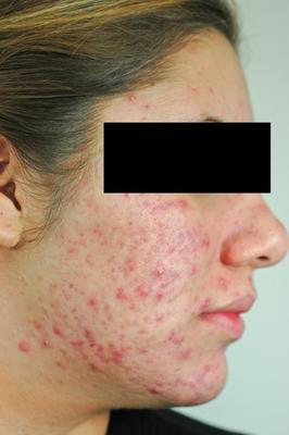 Laser Acne Treatment before 82949