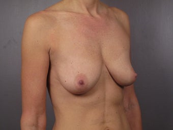Breast Lift / Breast Augmentation  before 291051