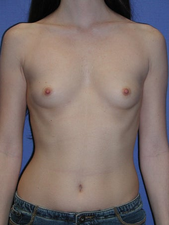 Breast Augmentation Surgery before 102267