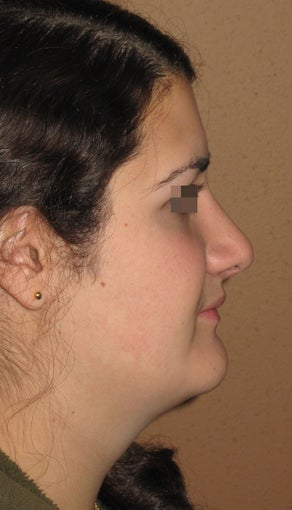 rhinoplasty after 270672