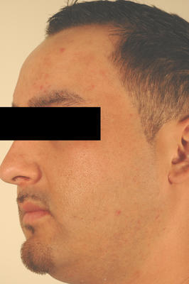 Laser Acne Treatment after 82957