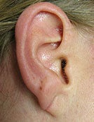 Split Earlobe after 196060
