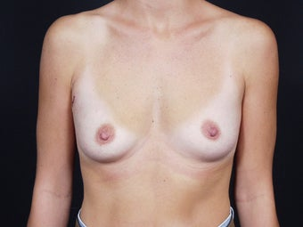29 Year Old Female for Breast Reconstuction before 643156