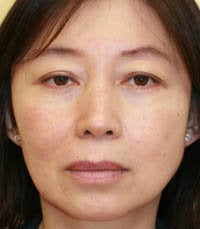 blepharoplasty (eyelids) before 219349