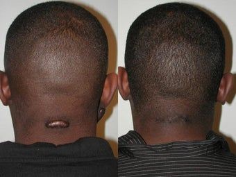 Keloid Excision before 137720
